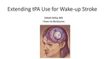 Extending tPA Use for Wake-up Stroke by Hebah Hefzy