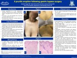 A Pruritic Eruption Following Gastric Bypass Surgery