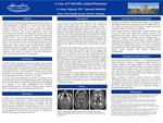 CADASIL subcortical dementia – A case report