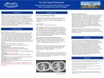 A Case of Diffuse Alveolar Hemorrhage