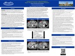 Fusobacterium nucleatum: A Rare Presentation of Hepatic Abscesses