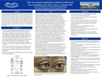 Rare case of gout manifesting as bilateral eyelid lesions