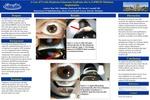 A Case of Uveitis-Hyphema-Glaucoma Syndrome due to ExPRESS Miniature Implantation